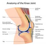 Selain Makan Ubat, Sakit Lutut Juga Boleh Dirawat Dengan Cara Ini